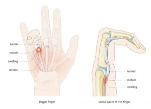 illustration-trigger-finger